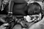 A young girl with Malaria rests in Lindy Hospital with her mother.