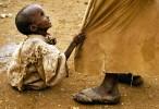Somalia_Child_shrp_PRINT