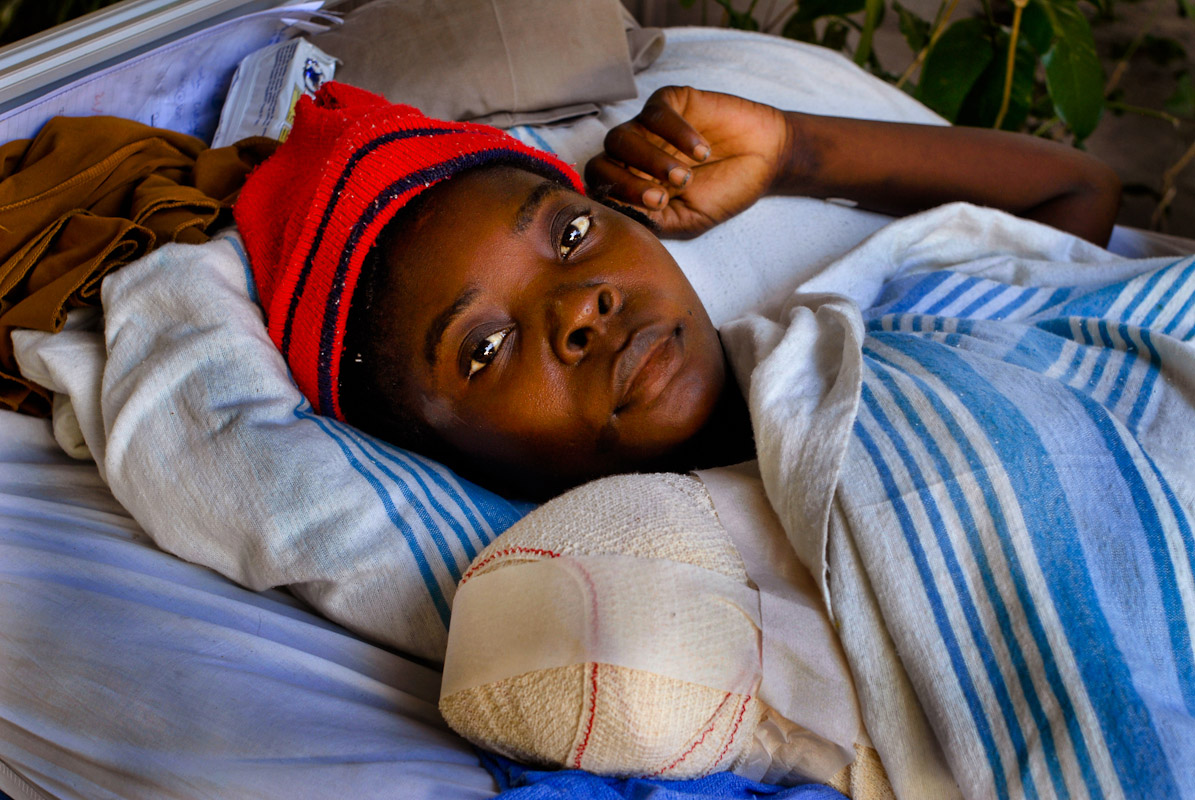 A young woman resting after an amputation.