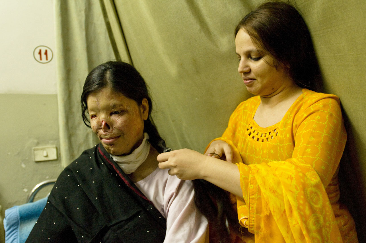 Kanwal Qayyan (left), 25 years old, sits on her hospital bed, while her cousin, Mehnaz Humaoon (right) braids her hair at the Family Health Hospital in Islamabad, Pakistan on November 19, 2008.   Kanwal is one of the 327 female burn victims presently accounted for in Pakistan, most are between the ages of 14 -25. The face and genitalia are the areas most generally targeted, those guaranteeing complete disfiguration.  Motives vary,  but are most frequently obsession, jealousy, suspected infidelity, husband wanting to re-marry, sexual non-cooperation. Kanwal has had 10 surgeries thus far and has many more to go.  She was on her way to her first day of work as an air- hostess when a man she does not know threw acid on her.  She suspects that her husband was involved, but this has not been proven legally.  Kanwal lives in Karachi with her two children.