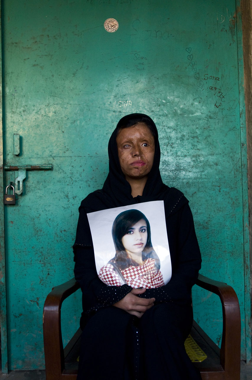 Saira Liaquat, 22yrs, burn victim and survivor, holding an old photograph of herself before she was burned with acid by her husband.  Photographed at Saira's parents' home in Lahore, Pakistan on February 7, 2009.  Saira is presently working as beautician at the Depilex beauty salon in Lahore, Pakistan.  There are presently over 300 cases of burn victims registered in Pakistan.  Most victims are between the ages of 14 - 25 years old.  Motives vary,  but are most frequently obsession, jealousy, suspected infidelity, husband wanting to re-marry, sexual non-cooperation.    The face and genitalia are the areas most generally targeted, those guaranteeing complete disfiguration.