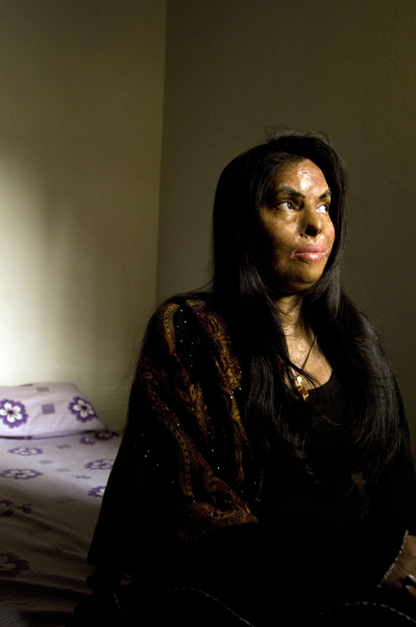 Sabira Manzoor, 31 year old burn victim and survivor, in one of the spare bedrooms she  stays in at the Depilex beauty salon in Islamabad, Pakistan on November 17, 2008.  Sabira was burned 15 years ago by her husband who lit her on fire with kerosine oil. After 30 surgeries, Sabira is doing much better and is presently working at the Smile Again beauty salon in Lahore, Pakistan and the Depilex Salon in Islamabad, Pakistan as a beautician.  There are presently over 300 cases of burn victims in Pakistan.  Most victims are between the ages of 14 - 25 years old.  Motives vary,  but are most frequently obsession, jealousy, suspected infidelity, husband wanting to re-marry, sexual non-cooperation.    The face and genitalia are the areas most generally targeted, those guaranteeing complete disfiguration.