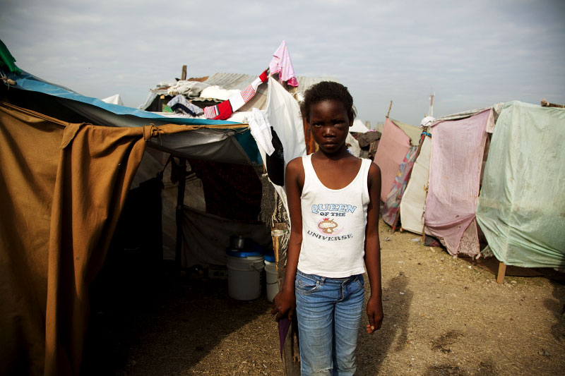 At Pone Rouge refugee camp, face injured 13 year Haitian quake IDP Sophia Lovelie stays next to her tent where she and 5 other family members live together. She lost two cousins due to the January 12th earthquake.