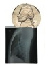 24 x 14 inches / 60.9 x 35.5 cmEmbroidered x-ray2012