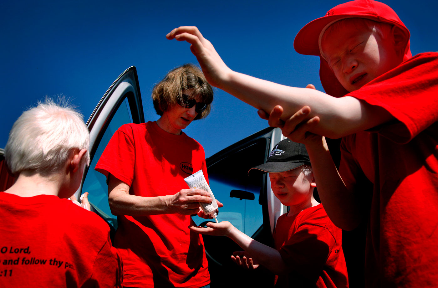 Kim Anderson helps the boys apply sunscreen before picking strawberries at a farm in Surry. The lack of pigment in their skin leaves them vulnerable to the sun.