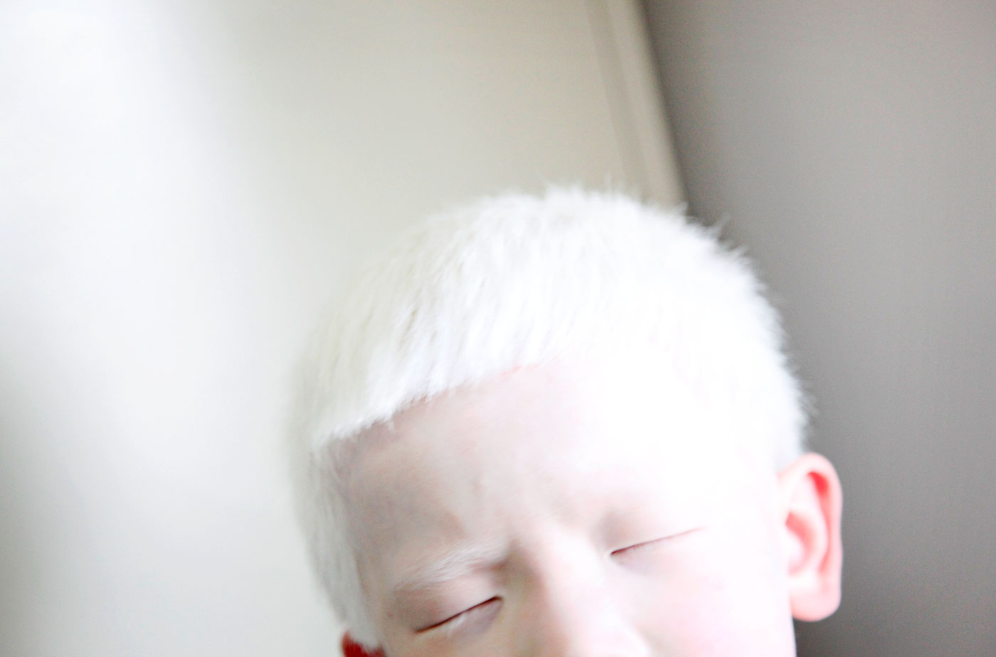 Paul Anderson, 9, squints in the light. Albinism is a rare genetic condition in which pigment is lacking in the skin, hair and eyes.