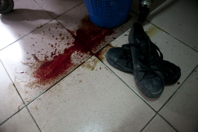 Blood splattered next to shoes in a clinic in Treichville, a suburb of Abidjan, Ivory Coast on Tuesday, March 8, 2011. Women marched through the streets of Abidjan today mourning the deaths of seven women killed last week by security forces loyal to Laurent Gbagbo. In Treichville, after finishing prayers (both Christian and Muslim) the marching women encountered the {quote}Compagnies Republicaines de Securité{quote} (CRS), special riot police loyal to Laurent Gbagbo. Its reported that the neighborhood youth guard stood in a line between the women and the CRS to protect the women when the CRS opened fire. At least four were killed including one woman and unknown number were injured.