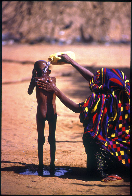 A mother washes her child who is suffering from malnutrition at a supplimentary feeding center. Gode, Ethiopia.Photo © J.B. Russell