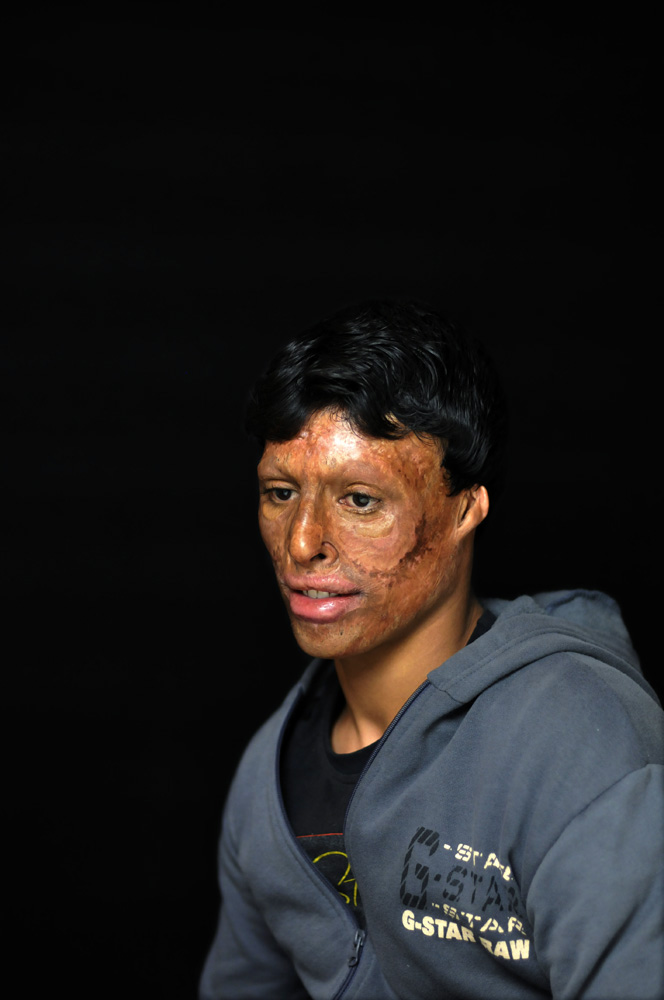 Qasim Mohammed, 19, from Basra, was severely burned on his face one morning in 2006 on his way to school after a suicide car bomb exploded next to the school bus he was riding on. Amman, Jordan. 01/12/2011.