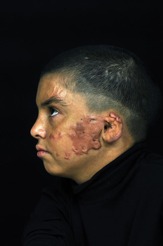 Hasin Jassim Mohamed, 12, is from Baghdad. He was severely burned on his face in 2010 while riding in a car on a family outing to visit an uncle when a car bomb exploded nearby. Amman, Jordan.