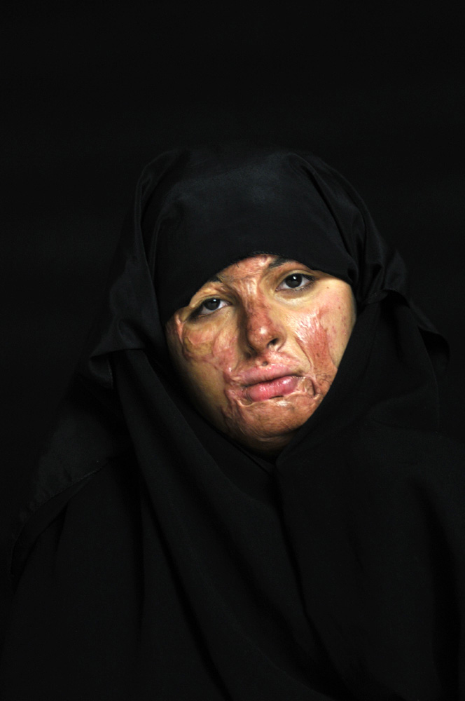 Haneen Mohammed Abdullah, 19, was newly married and pregnant with her first child. On her way to visit members of her family in Baghdad in 2009, she was severely burned on her face, chest, arms and hands when she jumped out of her family's car to buy ice cream from a well known ice cream parlor and a bomb exploded in front of the shop. She lost her baby and subsequently divorced from her husband due to her injuries.Amman, Jordan.
