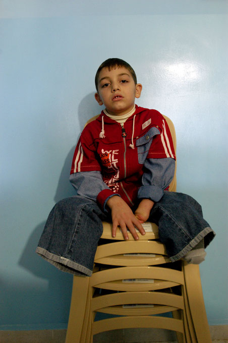 A young boy who lost his arm and legs during the 2006 Hezbollah - Israel war at the Nabatieh Rehabilitation Center for Independent Living. Hundreds of thousands of sub-munitions lie scattered across southern Lebanon following the 2006 Hezbollah - Israel war. Nabatieh, Lebanon.Photo © J.B. Russell