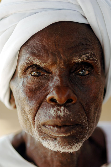 Man tortured by government representatives  in a Marla, in South Darfur, claims he had sand thrust in his eyes until he went blind.  Kalma camp, Nyala. South Darfur,Sudan,  November 2005.