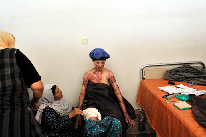 Farzana winces in pain as she has her bandages changed in the private clinic of Fatima Mohammadi, a nurse at the hospital in Herat, Afghanistan, August 5, 2010. Farzana tried to commit suicide by self-immolation after being beaten by her in-laws. Farzana and her brother were engaged to two siblings, and when Farzana's brother took another woman, Farzana suffered the wrath of her in-laws as retalliation;  she burned herself to escape the abuse.