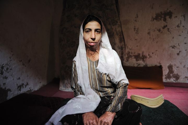 Zahra, 21, poses for a portrait in the room she shares with her mother in Herat, Afghanistan, August 4, 2010.  Zahra tried to commit suicide by self-immolation six years prior because she did not want to marry the man her family had arranged for her to marry; her father died when she was young, and she and her mother are poor.  Since Zahra burned herself, her fiance has disappeared; in Afghan culture, an engagement is considered on par with marriage, and Zahra can not try to find another husband unless her fiance divorces her.