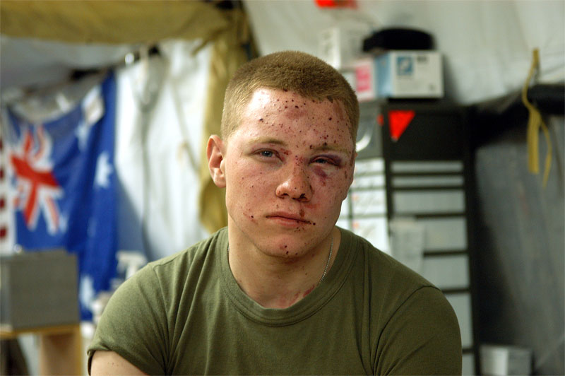 Lance Corporal Kyle Blumenstock, 19, sits in the emergency room of the Balad Hospital at the Balad Air Force base in Iraq with his two eardrums blown out and shrapnel wounds to his face. Hundreds of wounded soldiers have come through the military hospital for emergency treatment since the siege of Falujah began in early November. November 15, 2004.