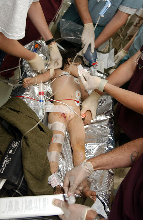United States Military surgeons treat a wounded five-year-old Iraqi girl who was found in a soccer field alone with shrapnel wounds to the face in the Emergency room of the Balad Hospital at the Balad Air Force base in Iraq. Hundreds of wounded soldiers and Iraqis have come through the military hospital for emergency treatment since the siege of Falujah began in early November.