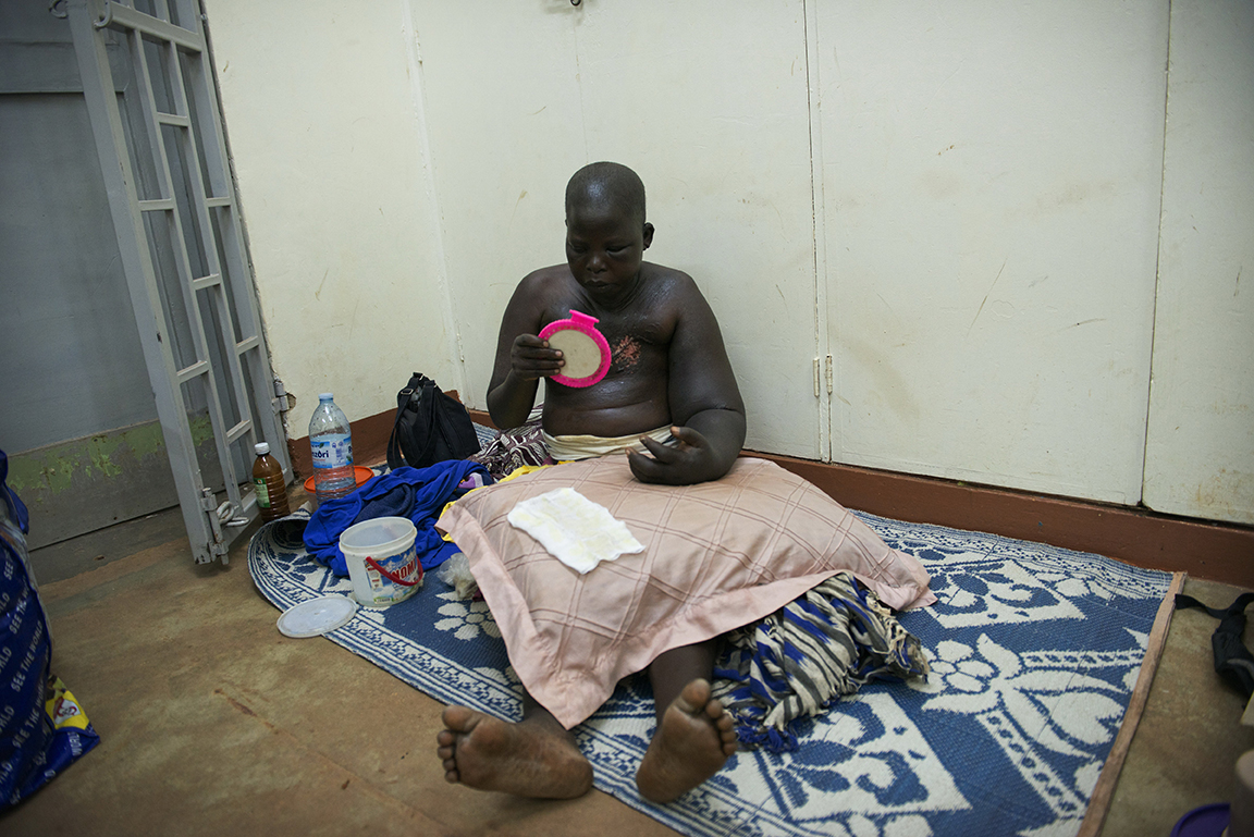 Breast Cancer patient Jessy Acen, 30, changes her own bandages before sleeping on the floor at the entrance of the Solid Tumor Ward of the Cancer Institute attached to the Mulago Hospital, in Kampala, Uganda, July 17, 2013.  Jessy, who has two children living with relatives in the northern district of Gulu,  found a tumor in her breast in 2008, and eventually went to a medical center in Gulu for diagnosis. Her case was disregarded by doctors in Gulu, and after persisting, Jessy was finally sent to the Mulago Hospital in Kampala for treatment.  Like so many women in Uganda who don't seek medical care for diagnosis and treatment in the early stages of Cancer, or who are misdiagnosed by medical staff around the country, Jessy's cancer was advanced when she finally had a mastectomy. Jessy sleeps at the hospital for several weeks while receiving chemotherapy because she could not afford the $10. bus fare back to Gulu.