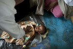A Somali doctor checks for a heartbeat as Abbas Nishe, 1.5 years, struggles to fight severe malnutrition in the Benadir Hospital in Mogadishu, Somalia, August 25, 2011.  The hospital is overflowing with people sleeping on the floors throughout most wards. Thousands of Somalis have traveled to neighboring countries and to the capital city of Mogadishu to escape extreme drought conditions in their villages--an estimated 1.7 million people have become drought displaced, according to an UNOCHA report. The horn of Africa is suffering one of the worst droughts in years, displacing thousands, and killing others through severe malnutrition, measles, and diarrhea.