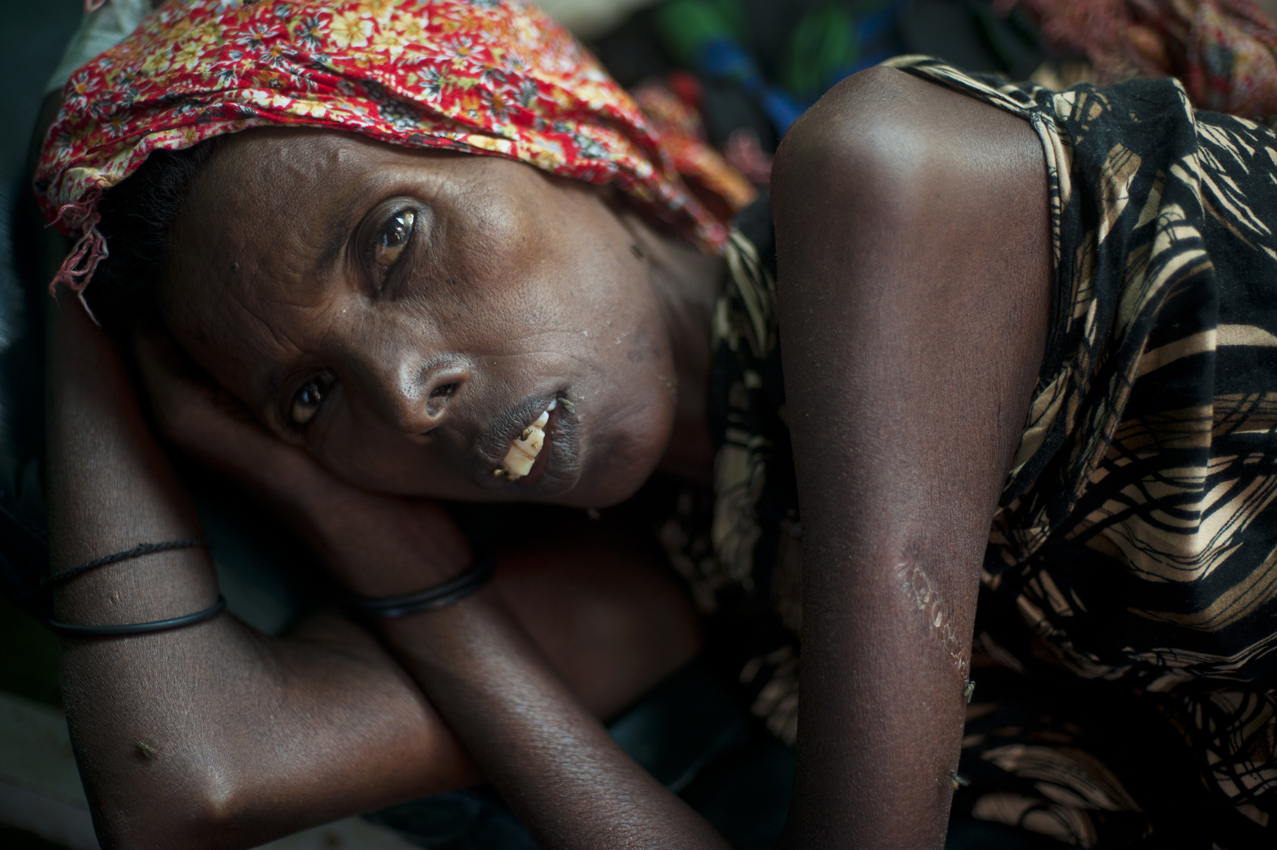 Medina Barako, around 50, lies in the Benadir Hospital ill with diarrhea, and possibly tuburculosis, after she arrived from Dinsor to a camp for internally displaced in Mogadishu, Somalia, August 29, 2011.  Thousands of Somalis have traveled to neighboring countries and to the capital city of Mogadishu to escape extreme drought conditions in their villages--an estimated 1.7 million people have become drought displaced, and tens of thousands have perished. The horn of Africa is suffering one of the worst droughts in years, displacing thousands, and killing others through severe malnutrition, measles, and diarrhea.
