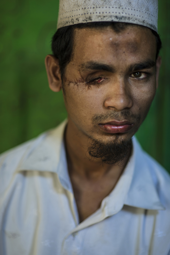 "Kyaw Kyaw, 22, from Kyaukpyu village, poses for a portrait in his home in the Thay Chaung camp for internally displaced Rohingya in Sittwe, Myanmar, November 2015. Kyaw Kyaw was shot in the eye during the second round of violence in Myanmar in October 2012, and spent weeks in a government hospital in Sittwe before recovering and returning home.  He is blind in one eye, and is not able to work and help his family survive.   ""I am not angry with the situation: I am always trying to be comfortable with people according to their religious decision. [This happened] because they wanted to cause problems for islam in general.  Right now, we are having a lot of difficulties.  My father can't work; we can't get money, and there are so many problems. We are suffering from many things right now. I used to have many friends—females, males—now I am the only one left, because anyone who has any money, left. Now I don't have any friends. Yes, I feel very bad I lost my eye.  I feel extremely sad. There are times when people talk down to me, but I am a man, and I am capable. My mother is getting old now, and I have to think about how to find a livelihood for her myself. If you want to think about how difficult it is for me, just imagine life without sight. Just close your eyes, and imagine. Of course I am frightened. I want to live in peace."