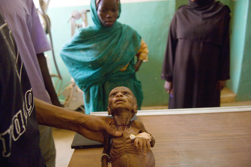 A seven week old boy fighting with malnutrition and intestinal blockage is held on the x-raying table by a technician as his mother looks on in the government hospital in Geneina, in west Darfur, March 8, 2007.  Since the beginning of the war in Darfur, over two million people have been displaced from their villages throughout the region, and hundreds of thousands have been killed.  Though much progress has been made by NGOs and the United Nations in flighting disease and malnutrition in IDP camps and throughout darfur, many darfurians are still struggling with malnutrition, malaria, respiratory infection, etc.