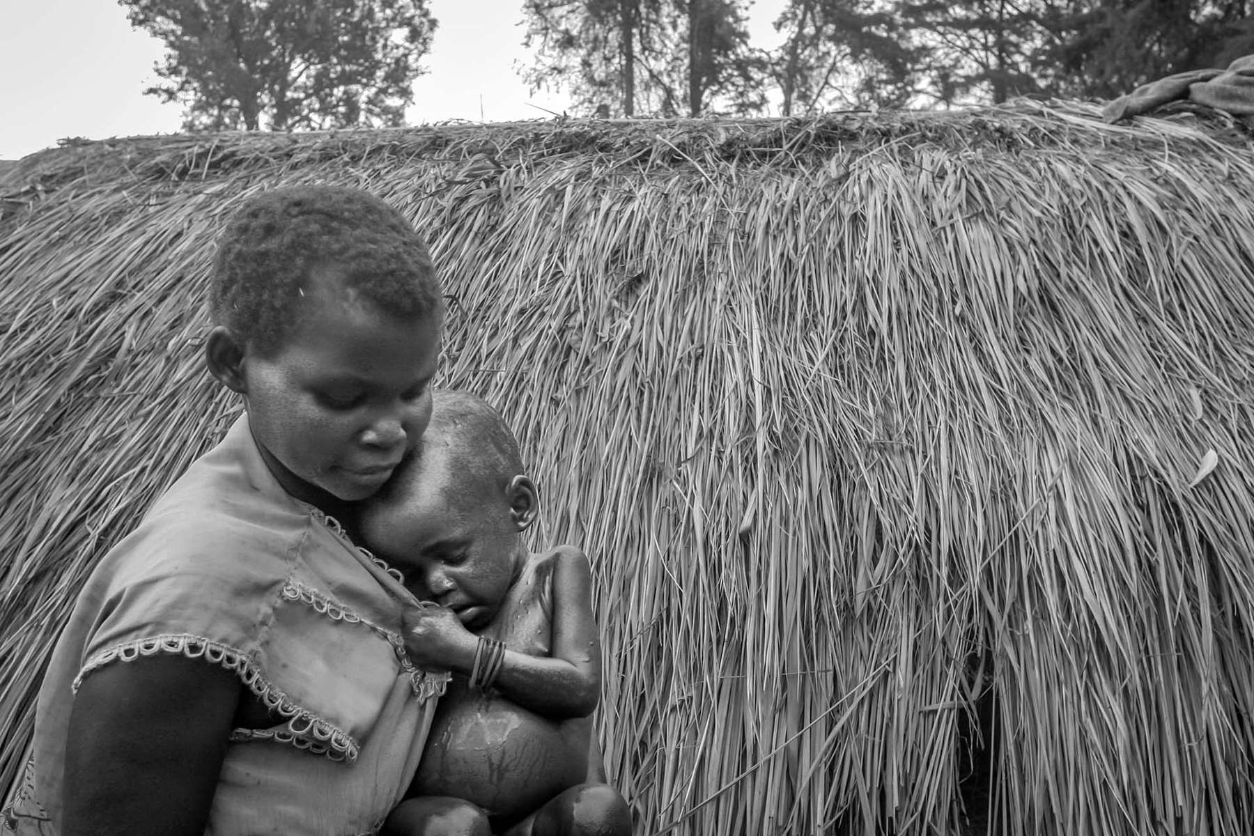 Mother tries to comfort her malnourished child at IDP camp in the village of Gety.