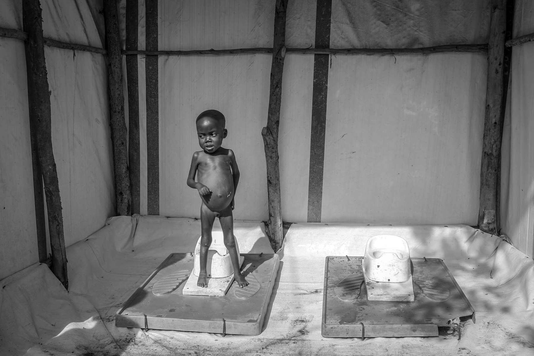Malnourished child cries for her mother at MSF (Doctors without Borders) hospital in Bunia .