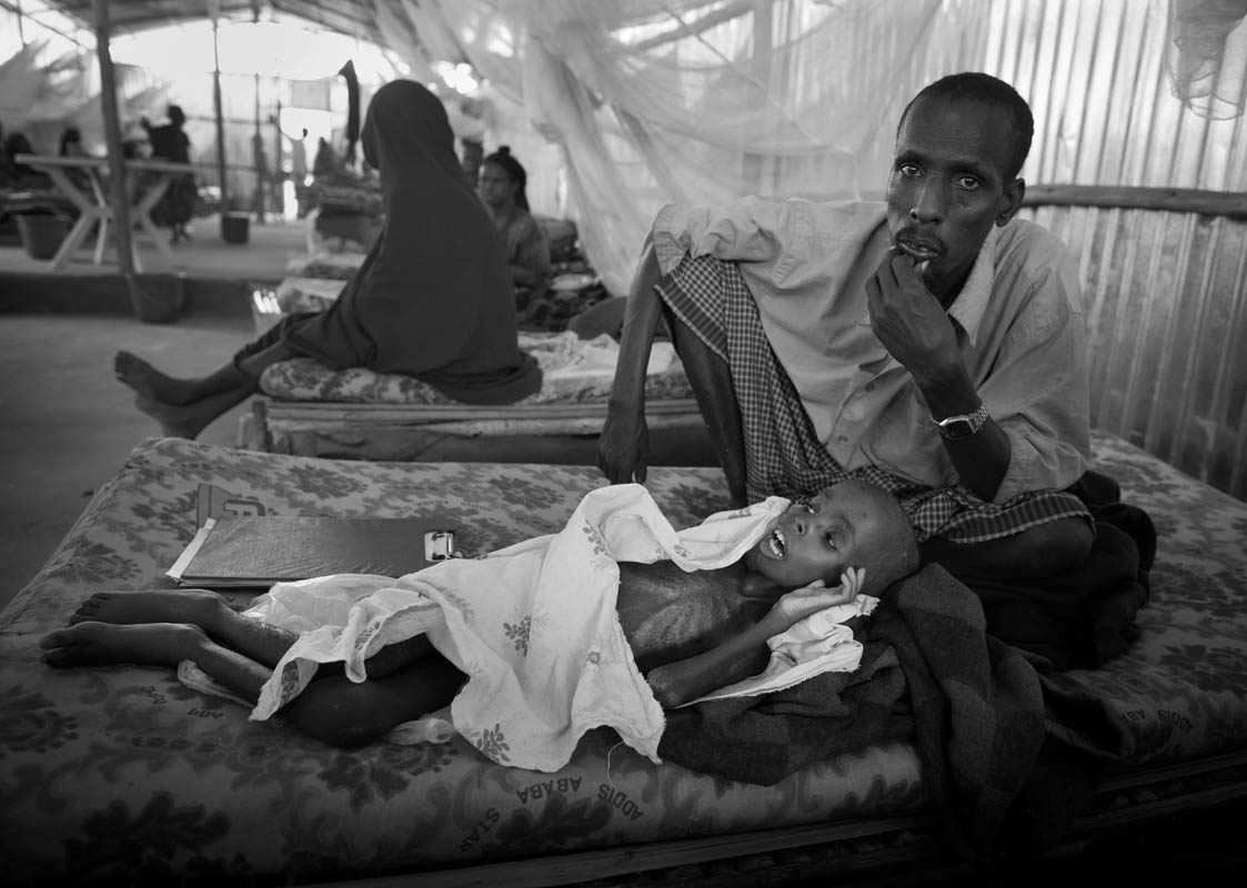 Mohammed Hassan, 4, recovers from severe malnutrition and its complication at a stabilization center run by MSF (Doctors without Borders) in Malkadida Refugee Camp in southeastern Ethiopia, a few kilometers from Somalia/Ethiopia border, Wed. 12 August, 2011.