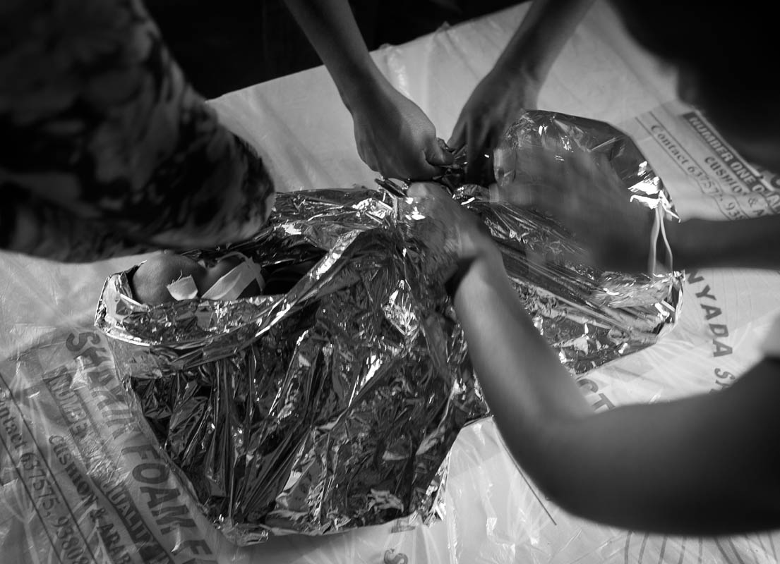 Wrapped in space blanket to keep warm, 1-year-old Rukiya is being treated for severe malnutrition at a health clinic run by MSF (Doctors without Borders) at a transit center in Dollo Ado in southeastern Ethiopia, a few kilometers from Somalia/Ethiopia border, Wed. 10 August, 2011.