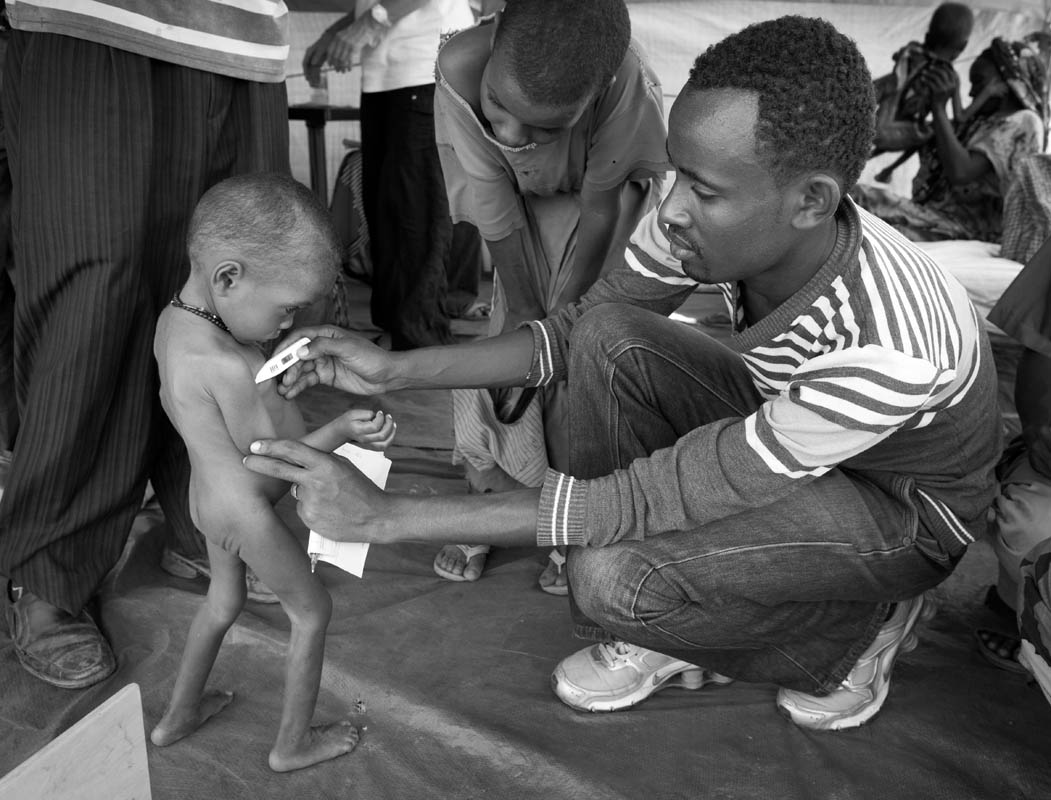 Malnourished Somali boy is being checked upon their arrival at clinic run by MSF (Doctors without Borders) in Malkadida Refugee Camp in southeastern Ethiopia, a few kilometers from Somalia/Ethiopia border, Wed. 12 August, 2011.