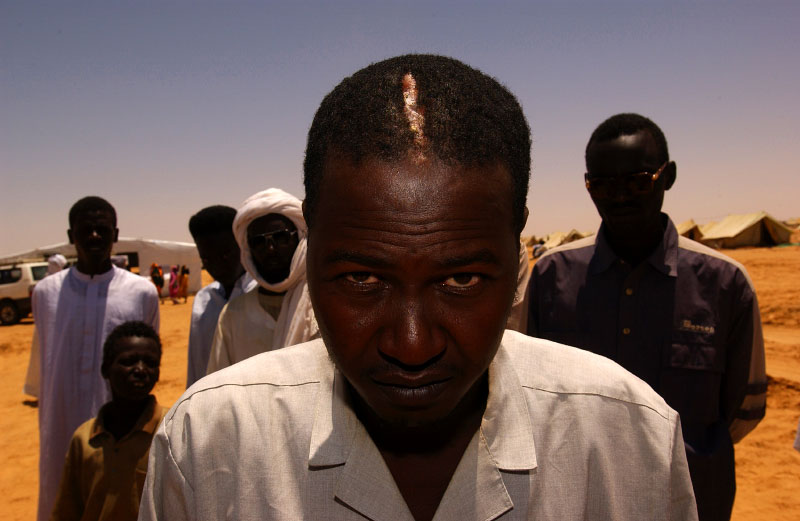 This Sudanese man were lucky enough that the rifle round fired from Janjaweed only made permanent ridge on his head instead of a hole.