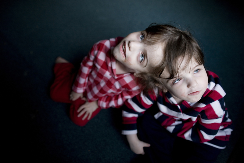 Conjoined twins Krista and Tatiana Hogan for Reader's Digest.