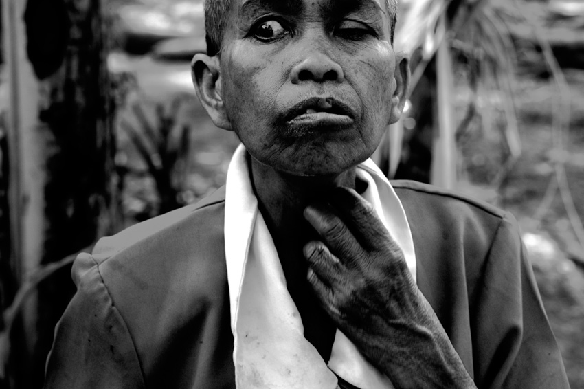 Siem Reap, February - 2008 : schizophrenic patient
