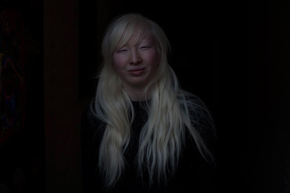 Hesse_albino_china004