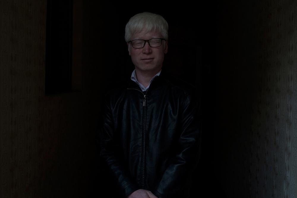 Hesse_albino_china007