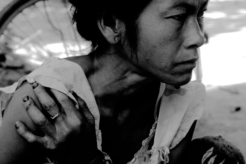 Siem Reap, February-2008 : a mentally impaired patient sits listlessly in a vilage nearby SiemReap