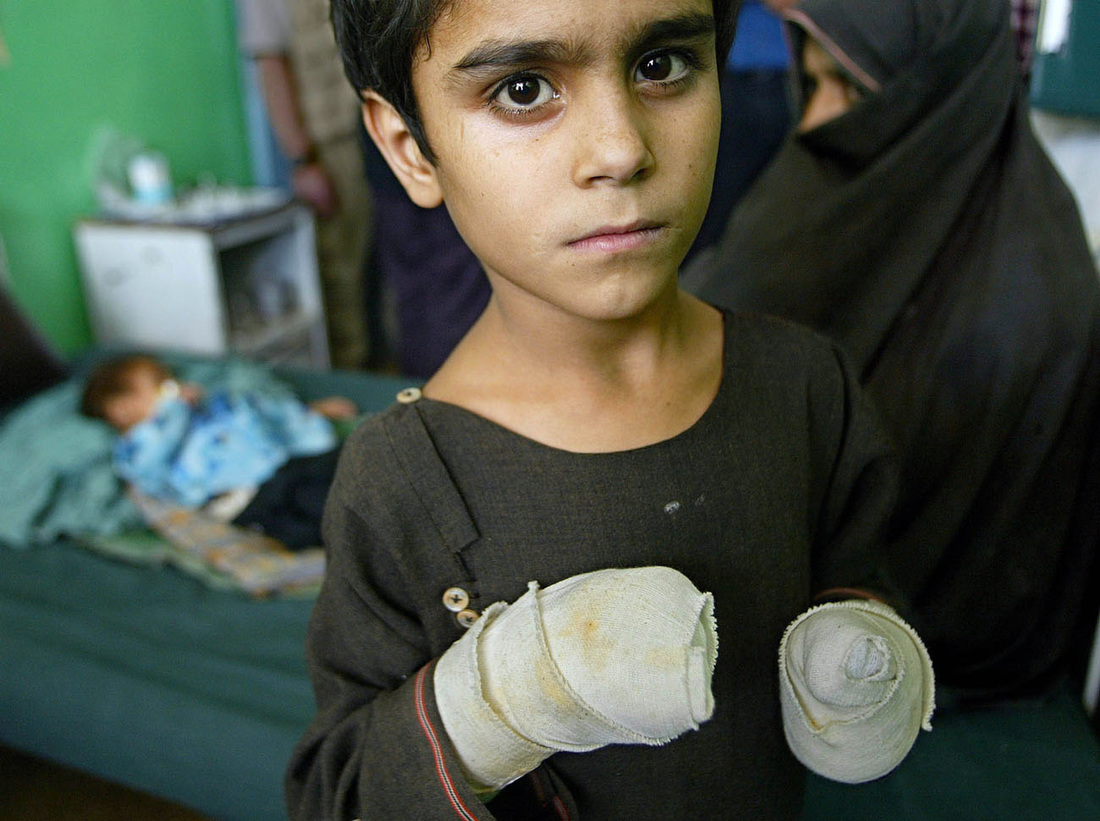 A young boy receives medical treatment at the main hospital in Kandahar. According to the United Nations, 20 percent of children in Afghanistan die before their first birthday, mostly from preventable diseases. August 2002.NPPA Best of Photojournalism ContestMagazine Portrait & Personality - Second Place 2002