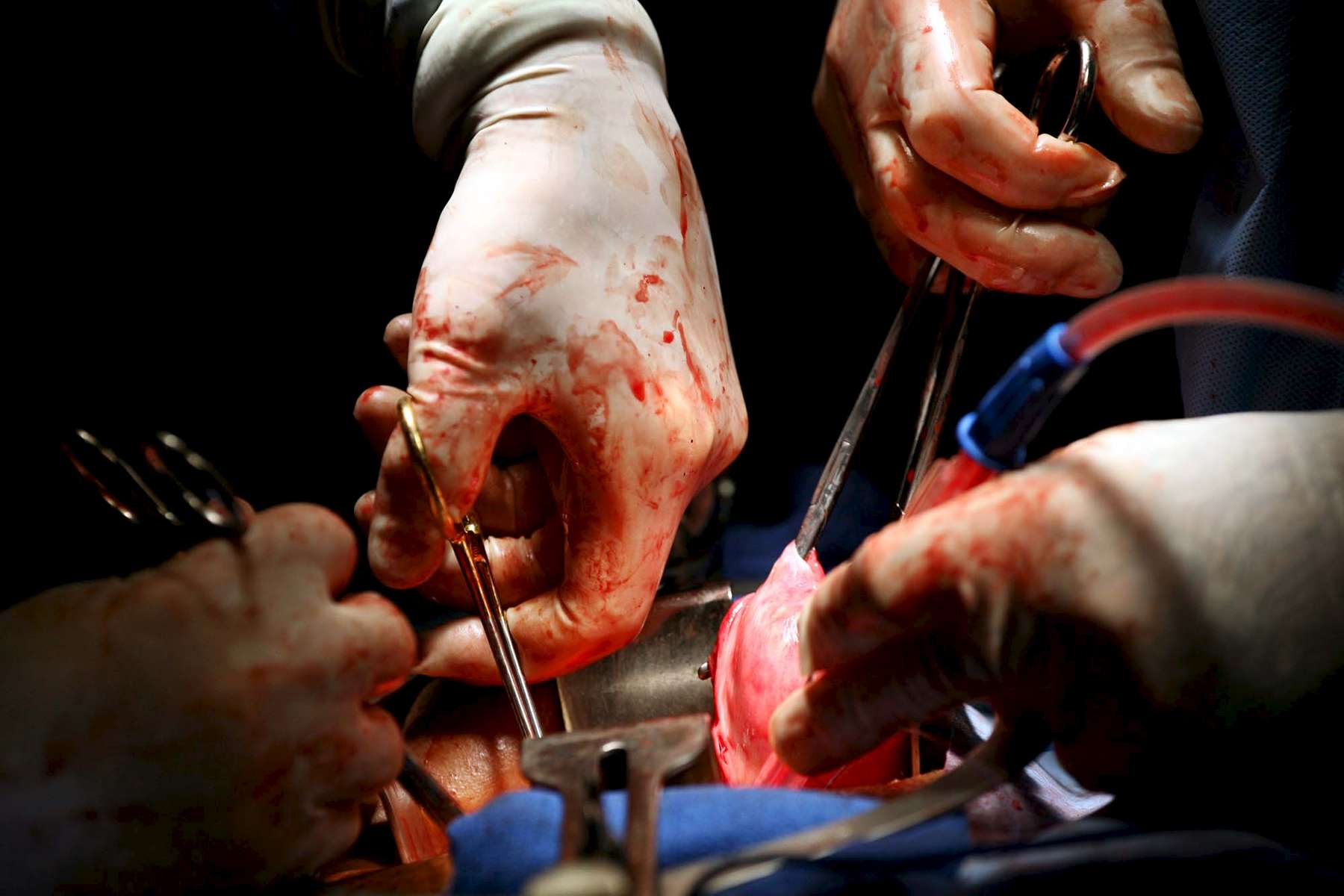 Surgeons remove a uterus during a hysterectomy.
