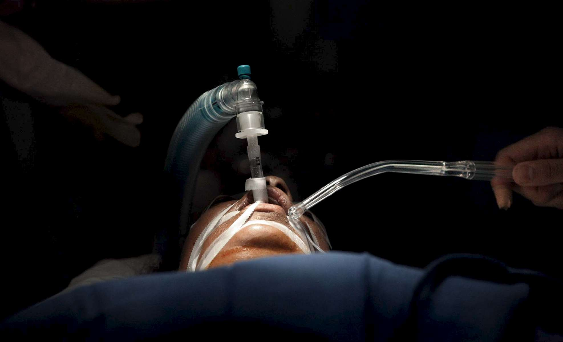 A patient lies in sedation while undergoing a hysterectomy.