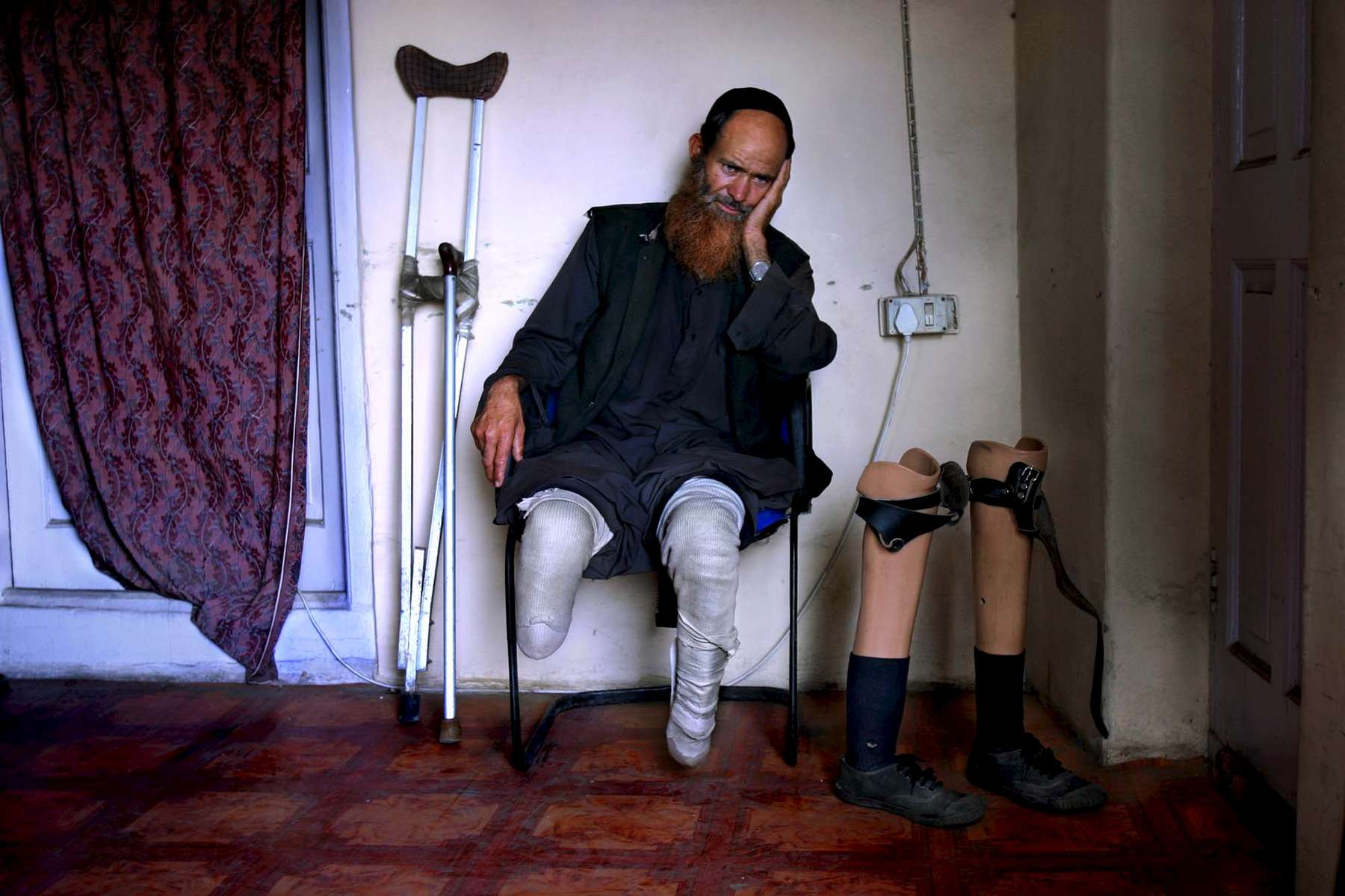 Kashmiri resident Gulzar Ahmed lost sections of both his legs to a land mine in rural Kashmir near the Pakistan border. Here he waits to talk more with legal aids to figure out what action he might take against the Indian government.