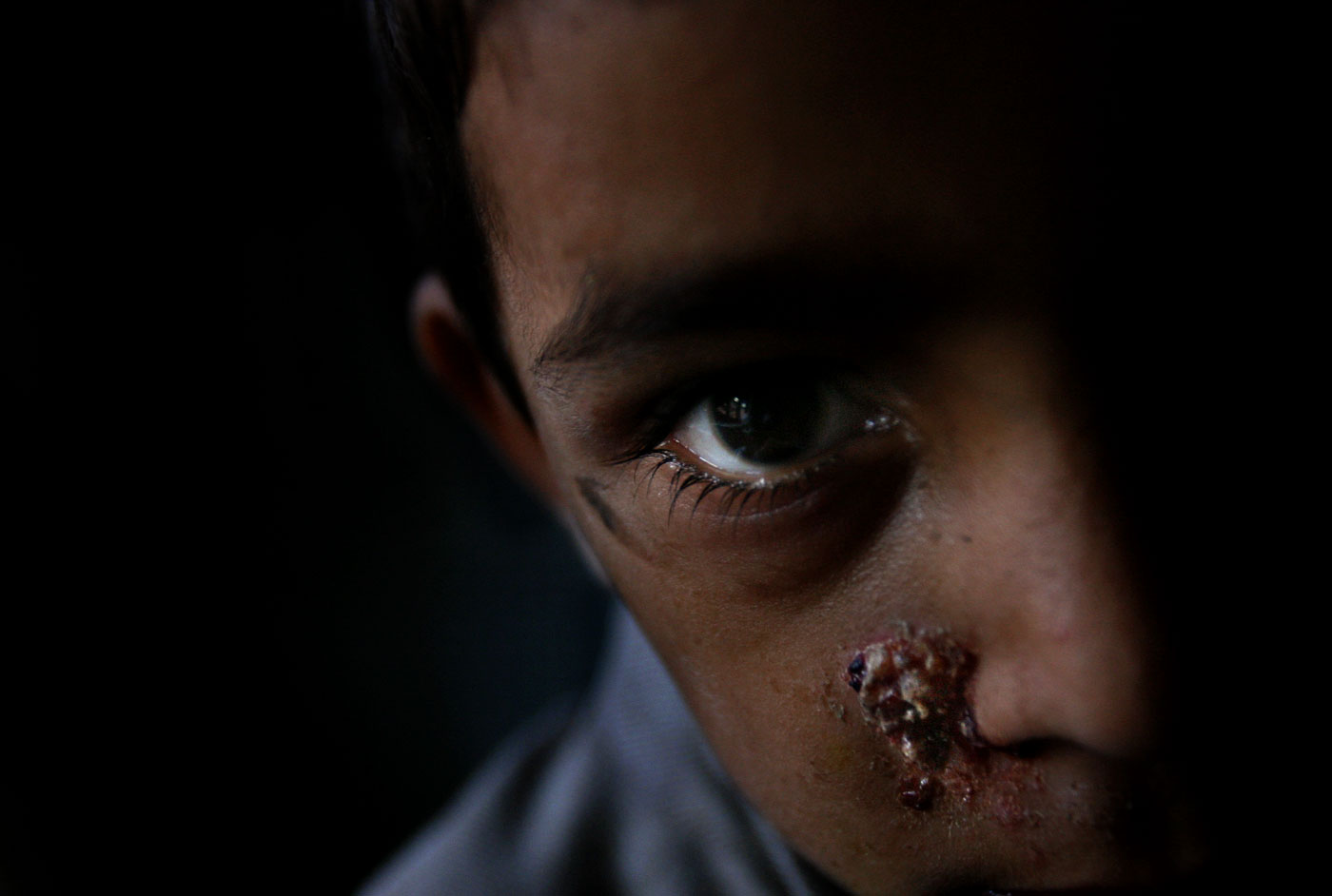 Ishfaq Khan suffers from an infected wound. Many of the orphans in Kashmir don't receive proper health care.