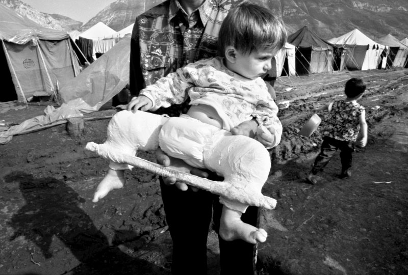The boy's father told a story of how Serb paramilitary broke his son's legs, promising that he would suffer even worse if the family did not leave their home and country immediately. ©Thomas James Hurst