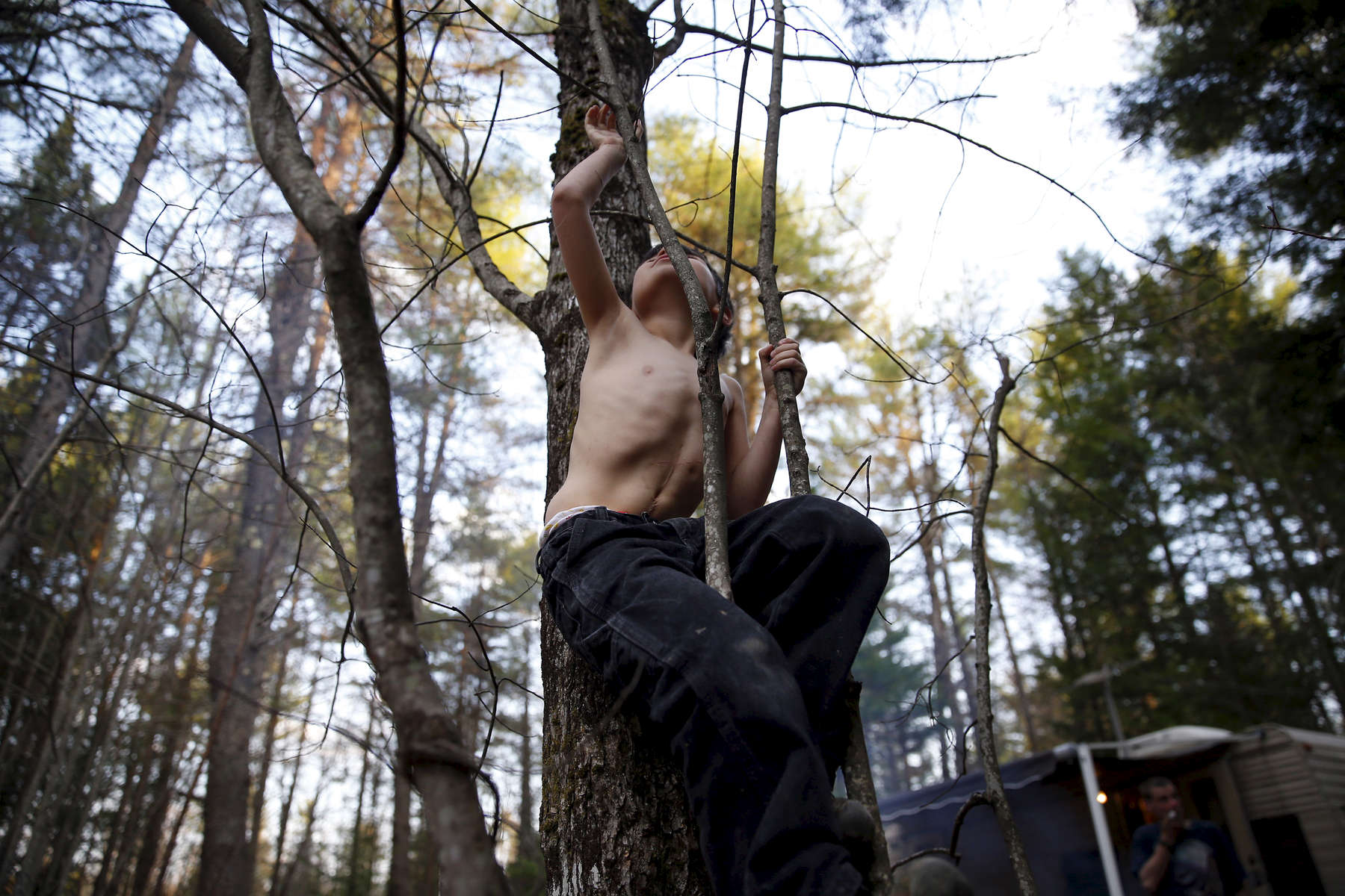 Oxford, Maine -- 5/4/2015-- Strider reached up to grab high on a sapling revealing a scar that snaked its way up his stomach and a dimple that marked the place where a feeding tube had once been as he climbed a tree in the first of several campgrounds that would come to be home throughout the course of the summer. Jessica Rinaldi/Globe Staff