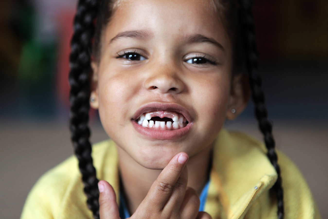 Kerry-leigh, 4, shows how she recently lost her two front teeth, at the Little David Educare Centre in Wentworth, a township on the southern side of Durban, in KwaZulu-Natal province. Over 92% of preschool children in KwaZulu-Natal attend unregistered ECD centres (crèches). Save the Children, operating in KZN for over 50 years, recognised the need to support crèches in the area with better management skills and access to learning materials, as well as running the crèche forums and supporting crèches with registration to become ECD centres.