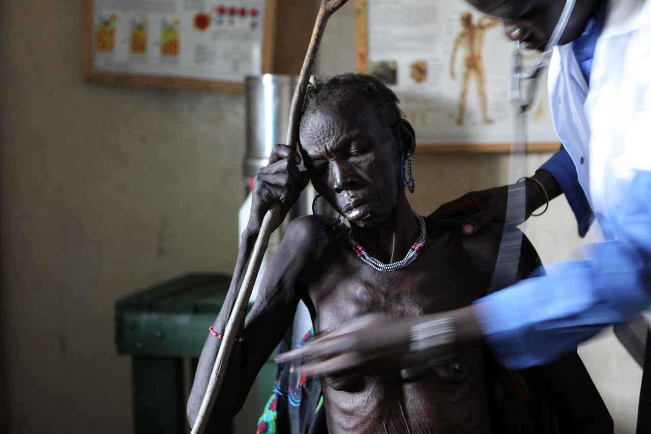 Ngaminyia Melok, 58, seeks treatment at the MSF Primary Health Care Center (PHCC) in Pibor, Jonglei State. Pibor is one of the largest villages of the Murle people, who are an entirely nomadic community of cattle herders. MSF is the only healthcare providing organisation operating in Pibor.