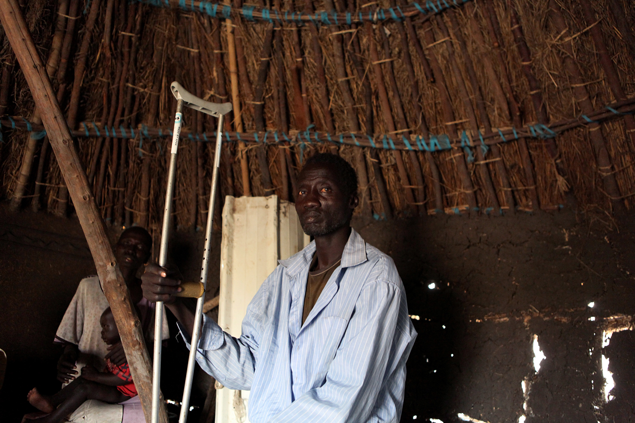'When I was shot, I was sleeping in the mosquito net and I didn't know that I had been shot. I tried to run three times. When I got enough power, I ran into the river and hid there. When the attackers killed the remaining people and took the cattle, they left, and then I came back into the village. The bleeding still continued for two days. I am still not as strong as I used to be. For now I am still in pain and just sitting idle in the tukul.'Torkej Kuach was shot during a 3am raid on his village, Torkej. Kuach now lives with relatives in Hai Majak, an area of Nasir with many displaced.