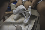 MARCH 15, 2017 -- A technician removes the mould from Baby Duda's legs, who is now 16-months-old, to make moulds of Duda's ankle and feet for new orthosis, a corrective ankle-foot brace, at Association for the Disabled Child (AACD), in Recife. The hospital is a non-profit that provides free services for families in need. Duda's previous lung infection has cleared up and her seizures are now under control with medication. She now weighs 16kgs, about 35lbs.