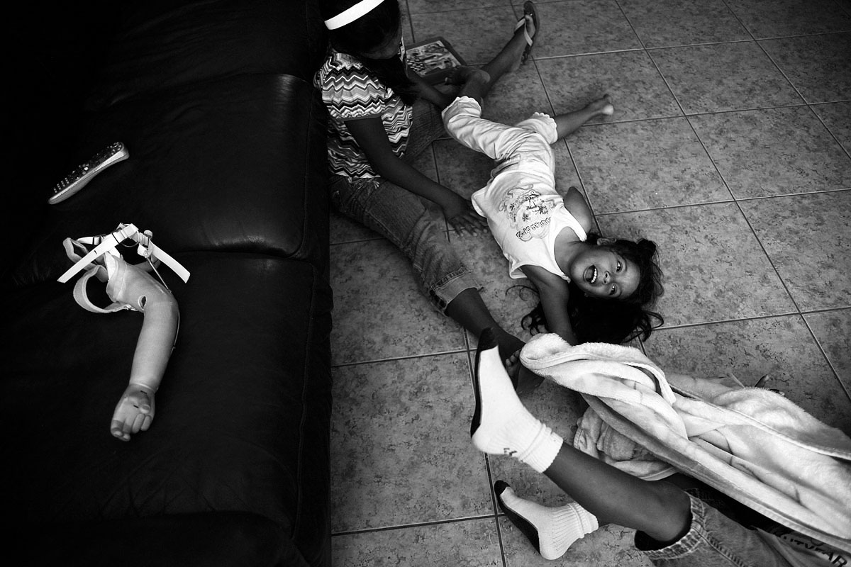 Itzel Chavez, 5, plays with her brother Isaac, 7, and Citlalli, 11, Thursday, Aug. 3, 2012 at their home in Naples, Fla. Her old rejected limb lay on the couch.