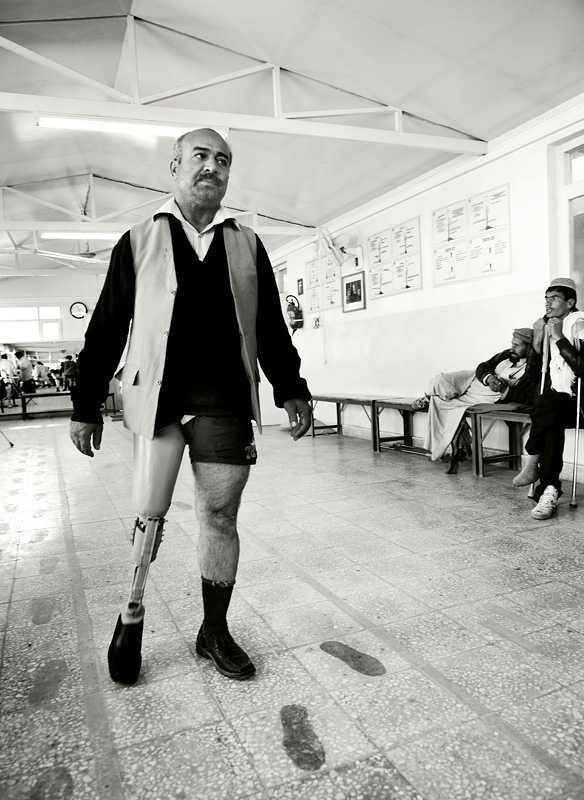 A patient tries out a new prosthesis at the ICRC limb-fitting centre. He had lost his leg several years earlier when stopped at a check point; he had got out to relieve himself when he stepped off the road, triggering a landmine.